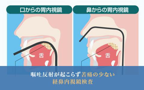 嘔吐反射が起こらず苦痛の少ない経鼻内視鏡検査