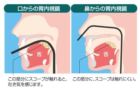 苦しくない経鼻内視鏡